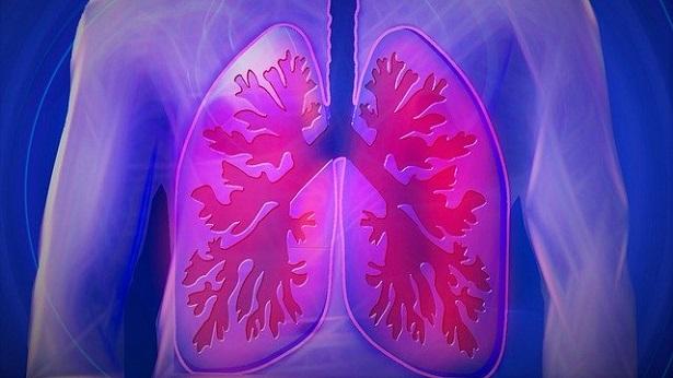 07/07: Dia mundial de combate à Fibrose Pulmonar Idiopática; entenda como funciona a doença - saude