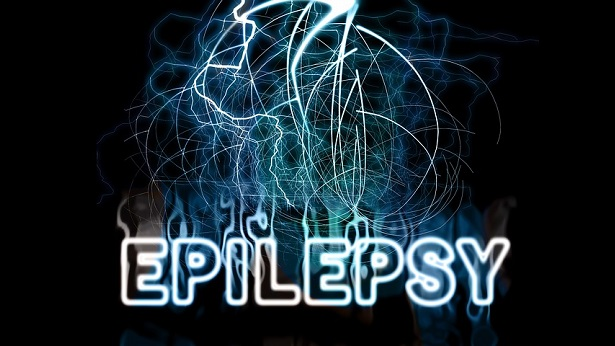 Estudo apresenta impactos da Covid em pessoas com epilepsia - saude