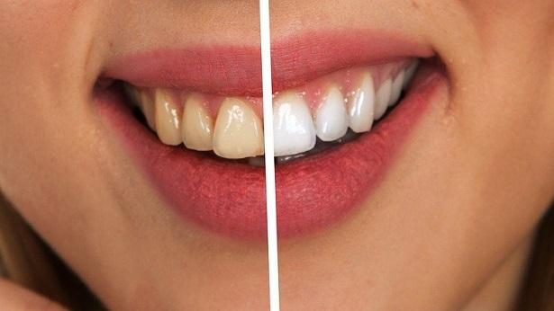 Dente do siso: Dentista esclarece seis dúvidas sobre o tema - saude
