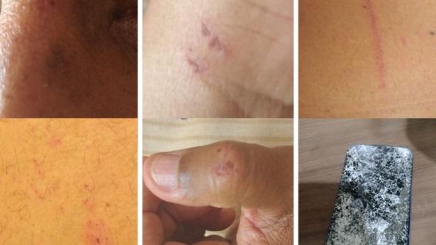 Cruz das Almas: Jornalista de 60 anos é agredido ao filmar guerra de espadas - destaque, cruz-das-almas, bahia
